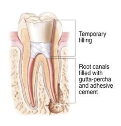 Endodontic Treatment