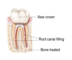 Endodontic Re-Treatment